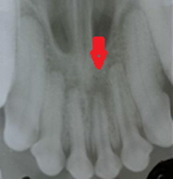 Evaluating vitality of teeth - Radiograph